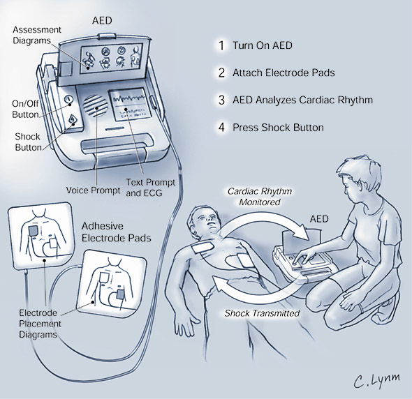 AED Components
