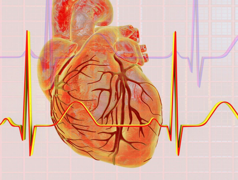 understanding defibrillators