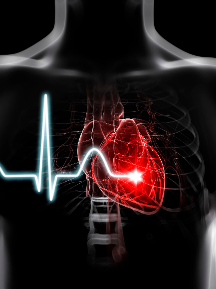 history of defibrillators